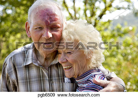 80 year old clipart free library Stock Photograph of 80 year old man with rosacaea-like skin ... free library