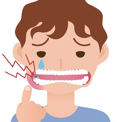 A toothache clipart clip art free download Toothache, Hurts of Bad Tooth, Stomatitis, Mouth Ulcer premium ... clip art free download