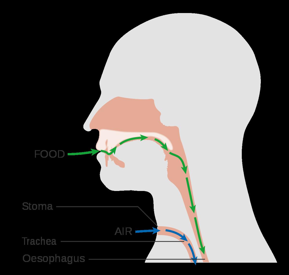 Laryngectomy - Wikipedia graphic freeuse