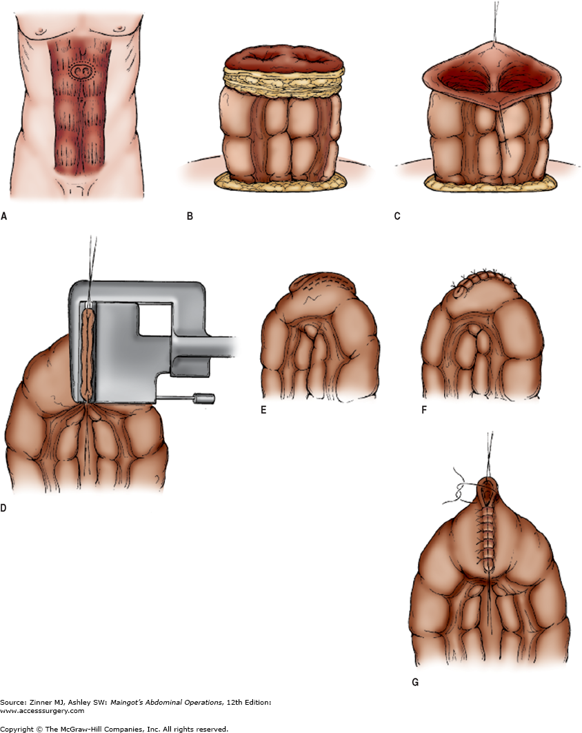 Chapter 9. Intestinal Stomas | Maingot\'s Abdominal Operations, 12e ... jpg library library