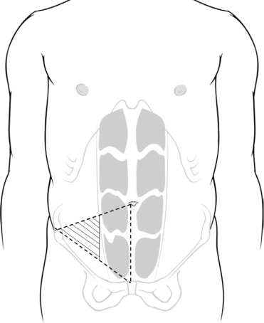 Preventing Stoma-Related Complications: Techniques for Optimal Stoma ... vector transparent library