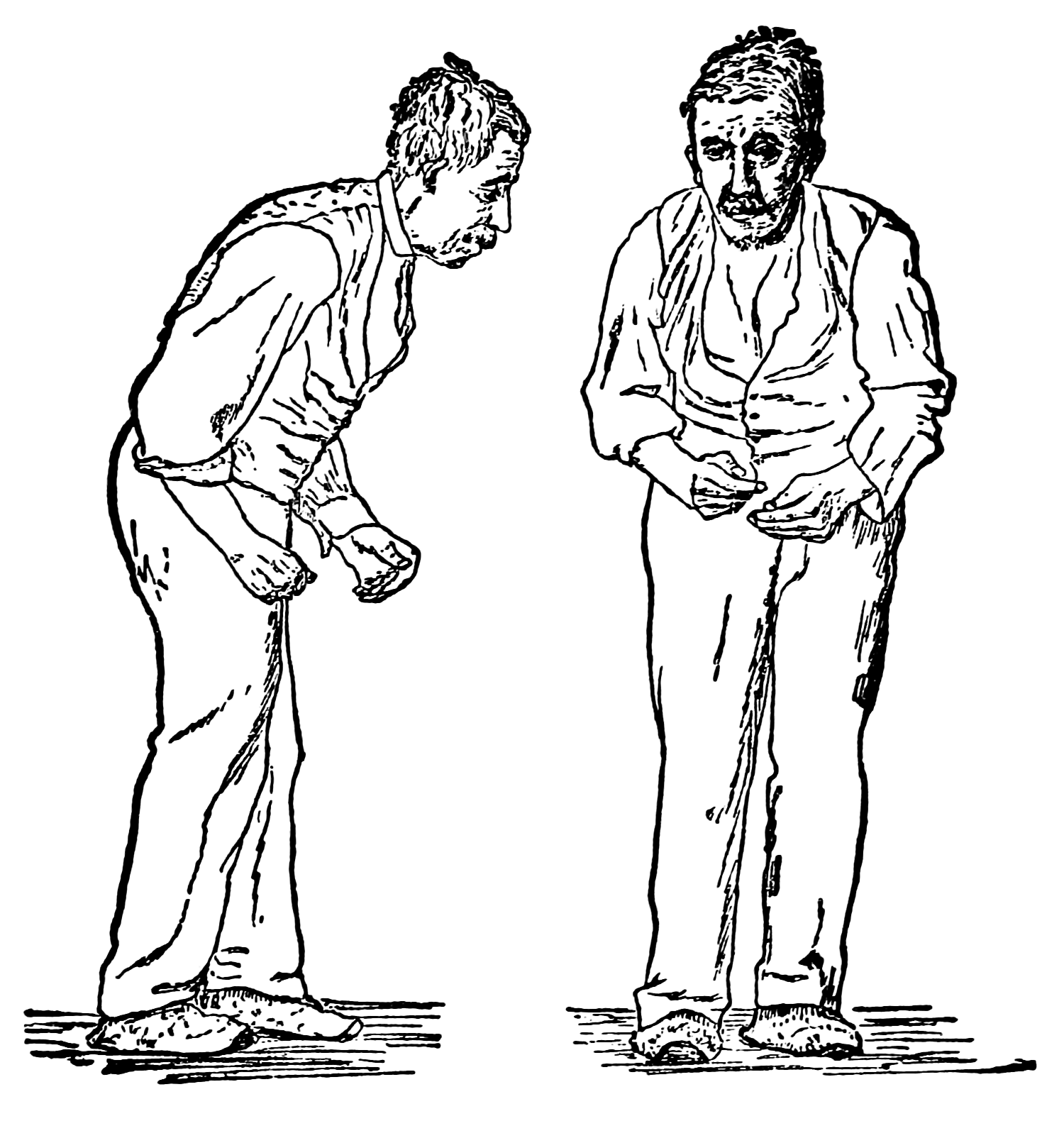 Absent from the body clipart jpg library Parkinson\'s disease - Wikipedia jpg library