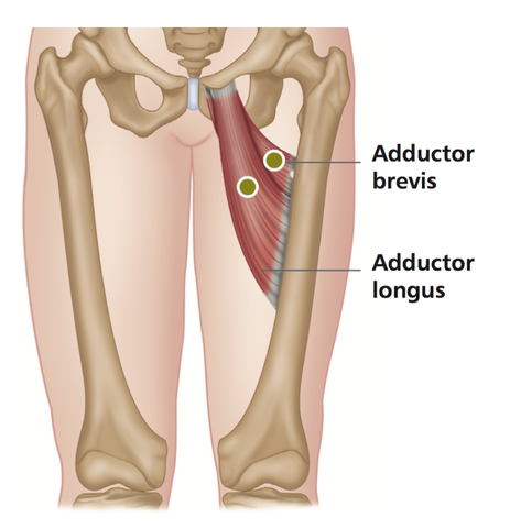 Tendinitis of the Hip Adductors – Stuart Hinds Performance Therapy jpg black and white library