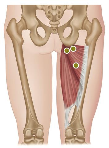 Treating the Hip Adductors – Stuart Hinds Performance Therapy clip art transparent library