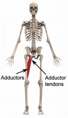 Adductor Tendonitis - clip royalty free download