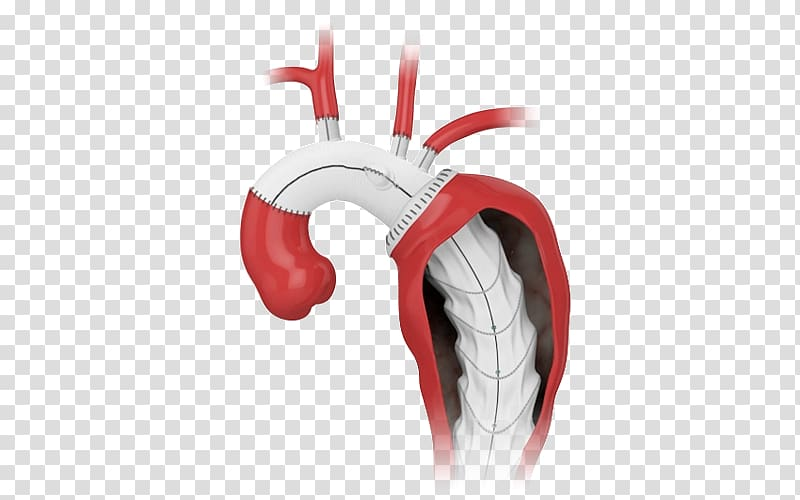 Aorta clipart graphic download Aorta Prosthesis Endovascular aneurysm repair Stenting Surgery ... graphic download