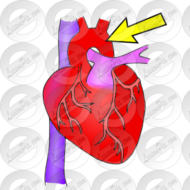 Aorta clipart jpg royalty free library Aorta Picture for Classroom / Therapy Use - Great Aorta Clipart jpg royalty free library