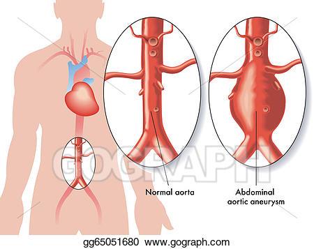 Aorta clipart jpg free download Vector Illustration - Abdominal aortic aneurysm. EPS Clipart ... jpg free download