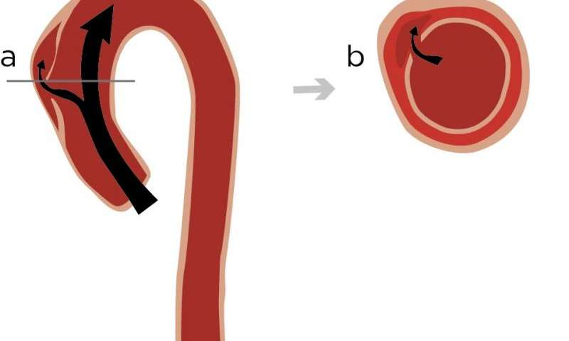 Aortic dissection clipart png freeuse Genetic mutation linked to aortic dissection in the chest png freeuse