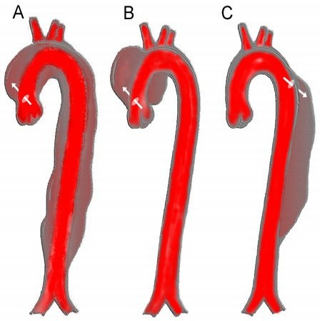 Aortic dissection clipart clipart library CRACKCast E085 - Aortic Dissection - CanadiEM clipart library