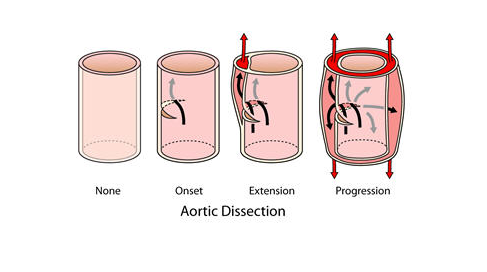 Aortic dissection clipart banner Surgical Options for Thoracic Aortic Disease | Northwestern Medicine banner