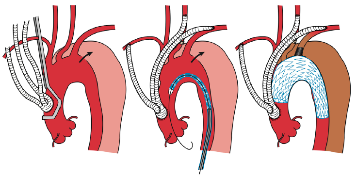 Aortic dissection clipart vector library Best surgical option for arch extension of type B dissection: the ... vector library