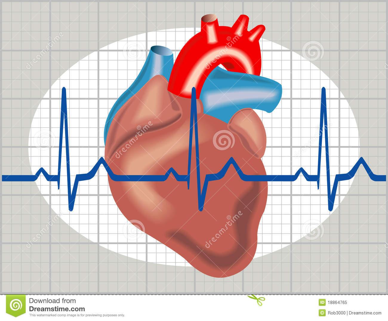 Cardiac arrhythmia clipart clipart download Cardiac arrhythmia | Clipart Panda - Free Clipart Images clipart download