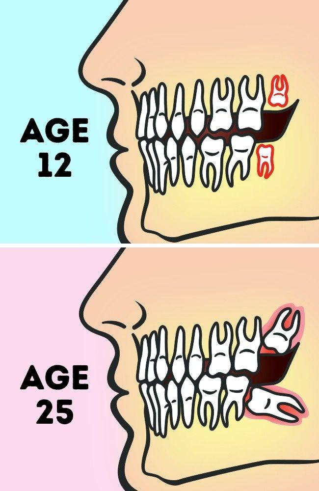 Awkward postures dentists clipart svg transparent Do We Really Need to Remove Wisdom Teeth? | CZŁOWIEK Pokarmowy ... svg transparent