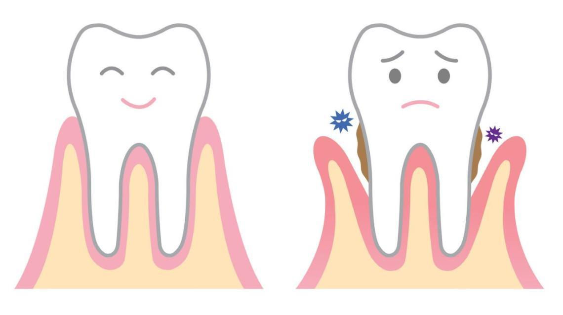 Awkward postures dentists clipart clip royalty free stock Paediatric Tooth Filling - Related articles, Q&A, & doctors | Practo clip royalty free stock