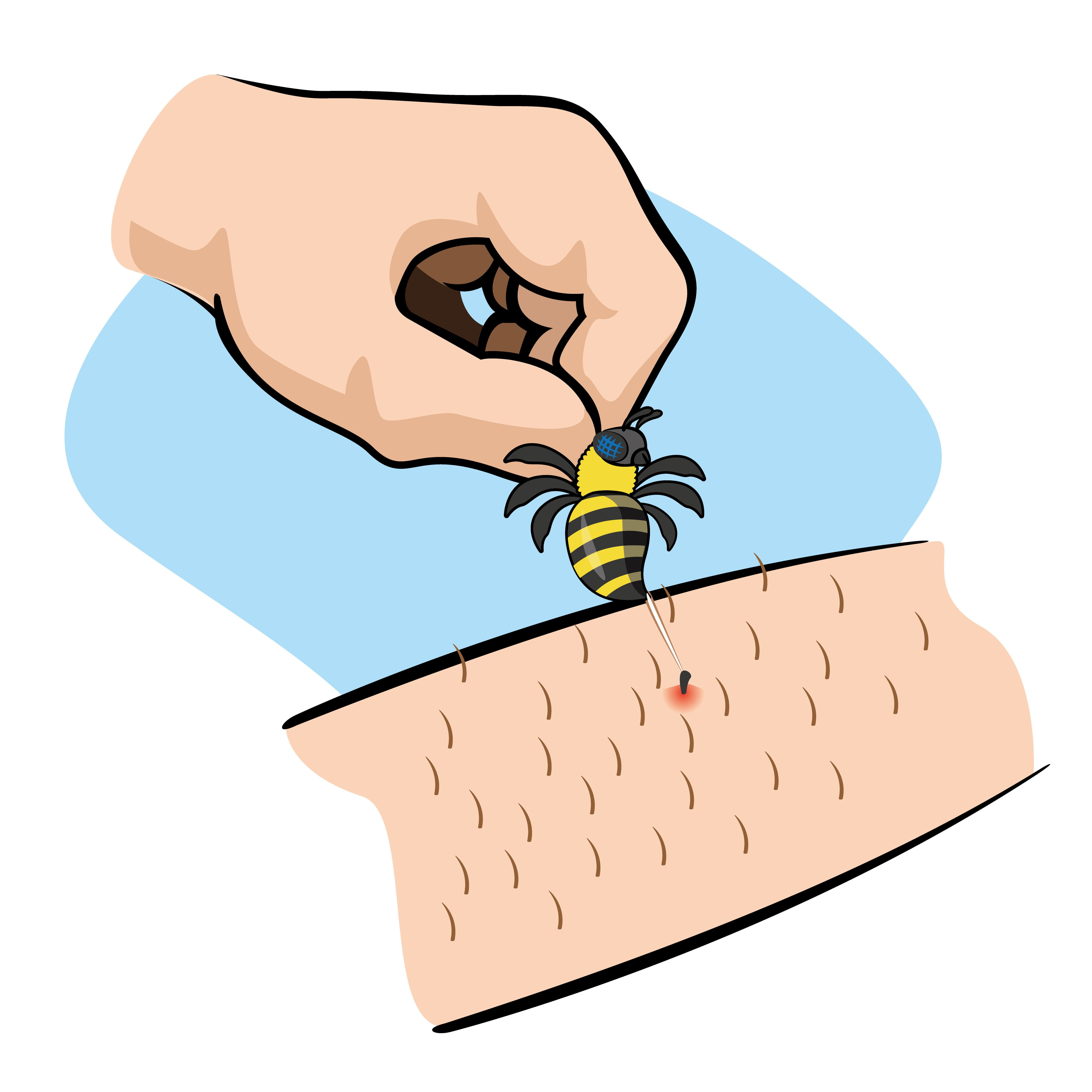 Bee sting allergic reaction clipart clip art black and white stock How to Treat a Bee Sting Fast (and Safely)? A Complete Guide clip art black and white stock