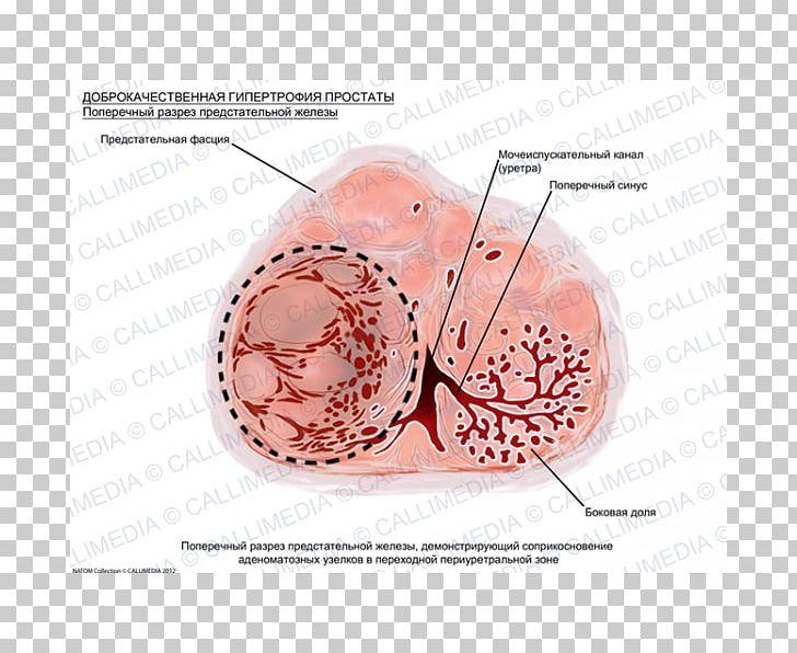 Benign tumor clipart clipart library library Prostate Cancer Benign Prostatic Hyperplasia Hypertrophy Benign ... clipart library library