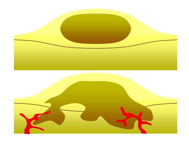 Benign tumor clipart vector transparent download File:BENIGN AND MALIGNANT TUMOUR.png - Wikimedia Commons vector transparent download