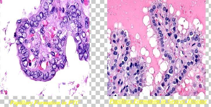 Benign tumor clipart clipart free download Thyroid Cancer Benign Tumor Goitre PNG, Clipart, Free PNG Download clipart free download