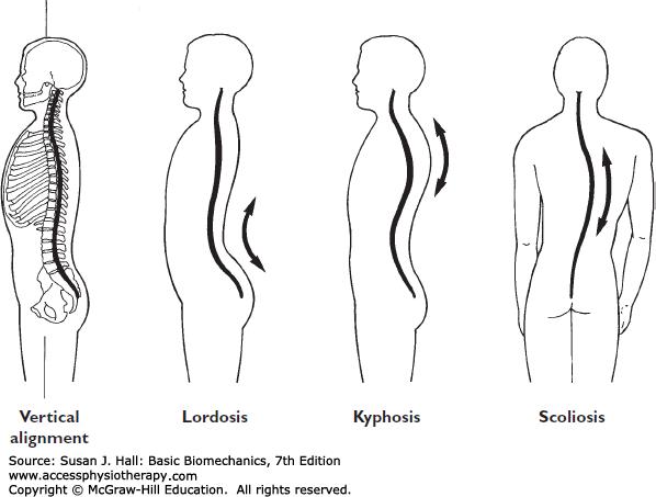 The Biomechanics of the Human Spine | Basic Biomechanics, 7e ... clip art freeuse library