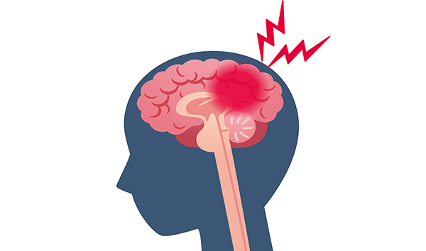 Bleed out clipart clipart library stock Brain Bleed Injuries | Cirignani Heller & Harman, LLP clipart library stock