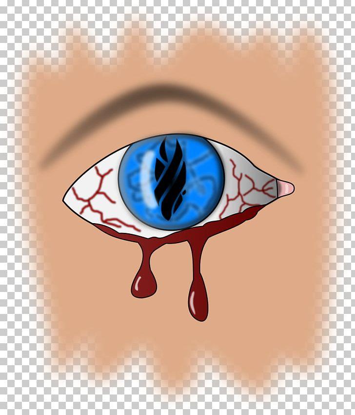 Bleed out clipart clip transparent stock Eye Bleeding Heart Retinal Hemorrhage PNG, Clipart, Art, Bleed ... clip transparent stock