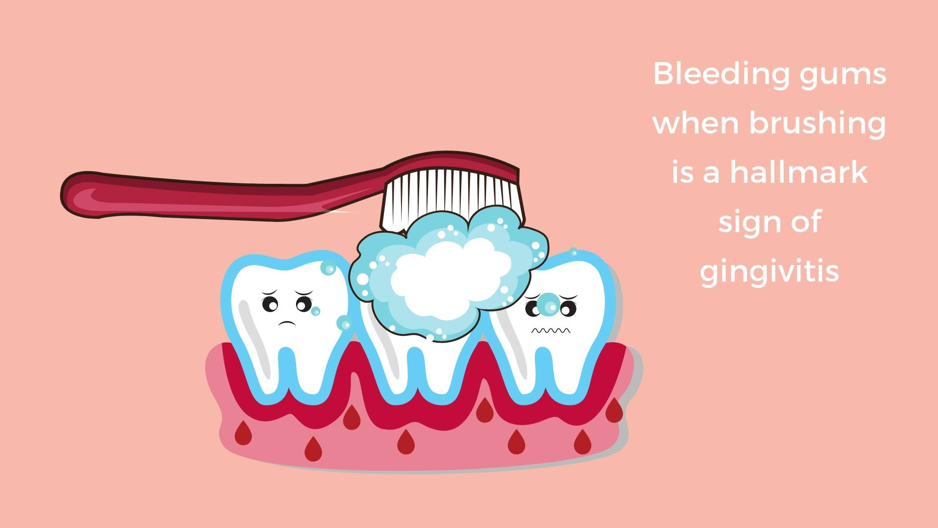 Bleed out clipart clipart royalty free stock Bleeding gums, gingivitis and how to fix it - Method Dental clipart royalty free stock