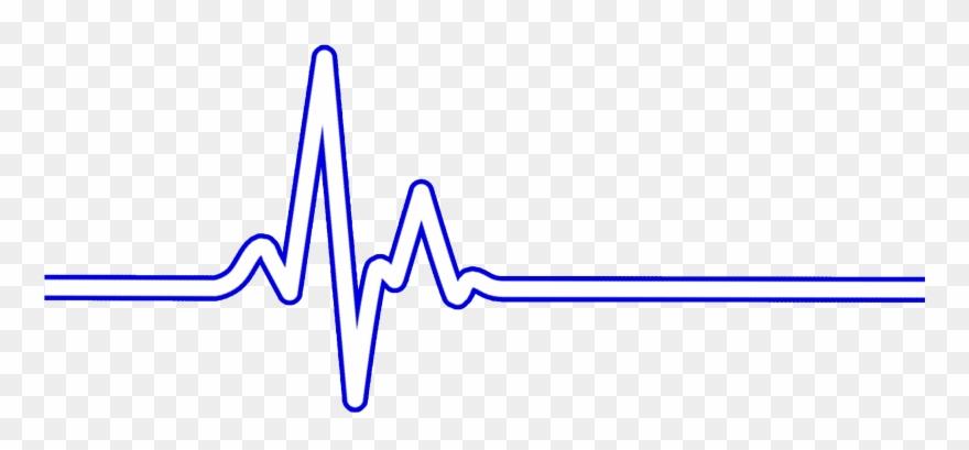 Bpm clipart jpg free stock Heart Rate Bpm Ecg Ekg - Electrocardiogramme Png Clipart (#1538228 ... jpg free stock