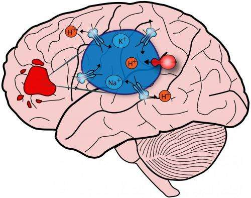 Brain biopsy clipart picture What autism can teach us about brain cancer picture