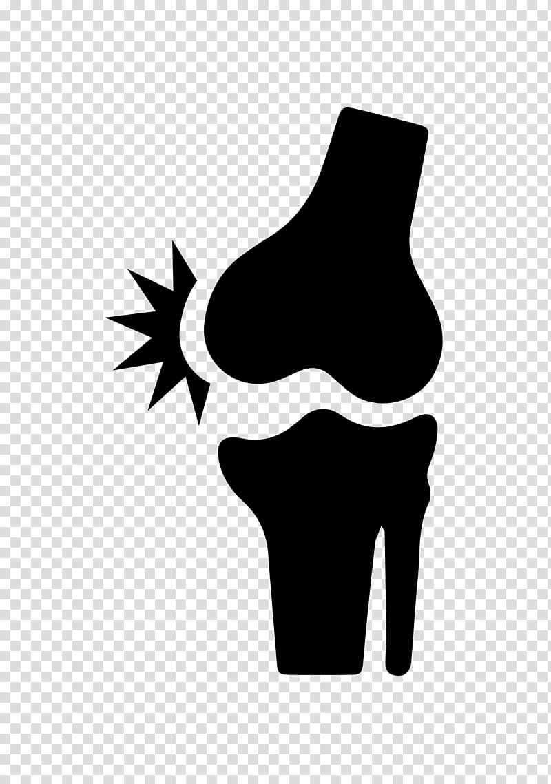 Knee replacement clipart