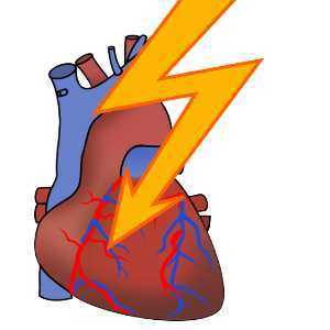 Cardiac arrhythmia clipart vector free stock Body Temperature Triggers Sudden Cardiac Death - HealthManagement.org vector free stock