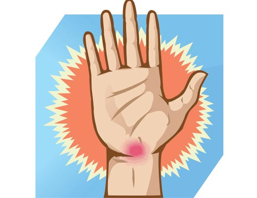 Carpal tunnel clipart