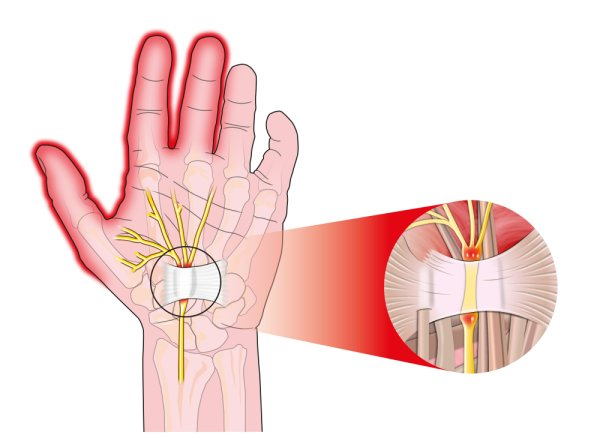 Carpal tunnel clipart picture free download Healthy Wrist: How To Self-Treat Carpal Tunnel Syndrome picture free download