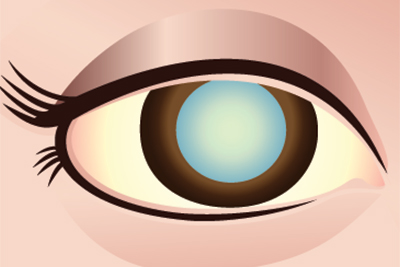 Clear Truths About Cataracts - Main Line Today - June 2014 ... banner black and white