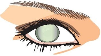 Cataracts clipart clip royalty free library Eye Health Online Course - Module 2: Eye Conditions clip royalty free library