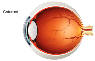 Cataracts clipart graphic library download Free PNG Images & Free Vectors Graphics PSD Files - DLPNG.com graphic library download