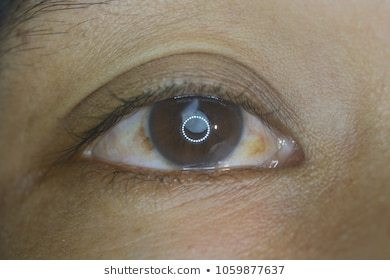Close Up Of The Senile Cataract During Eye Examination, Mature - 280 ... png black and white stock