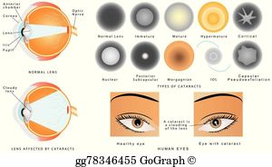 Cataract Clip Art - Royalty Free - GoGraph svg royalty free