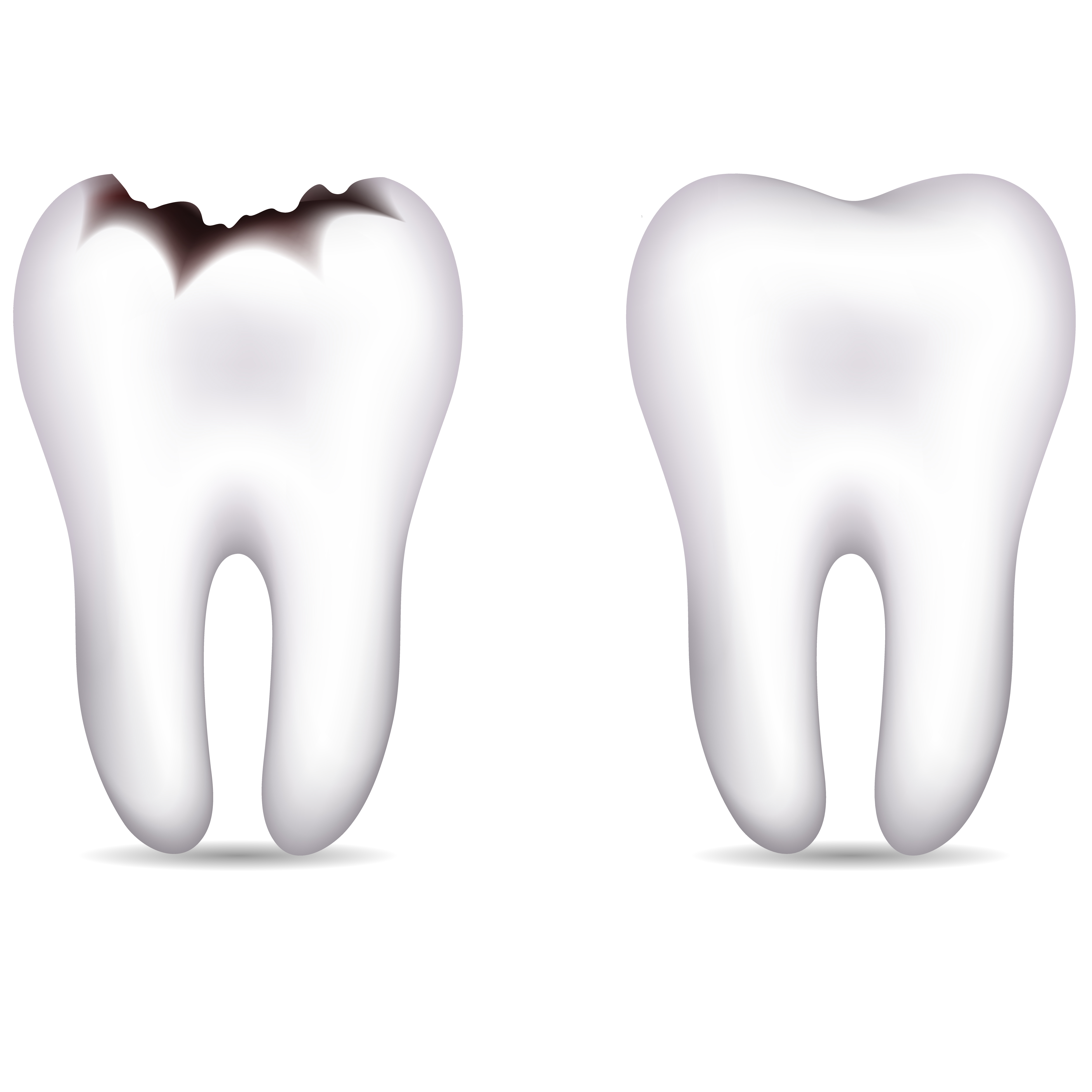 Cavity images clipart free Picture Of A Tooth | Free download best Picture Of A Tooth on ... free