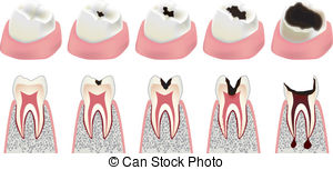 Cavity images clipart jpg black and white stock Cavity Clipart and Stock Illustrations. 11,882 Cavity vector EPS ... jpg black and white stock
