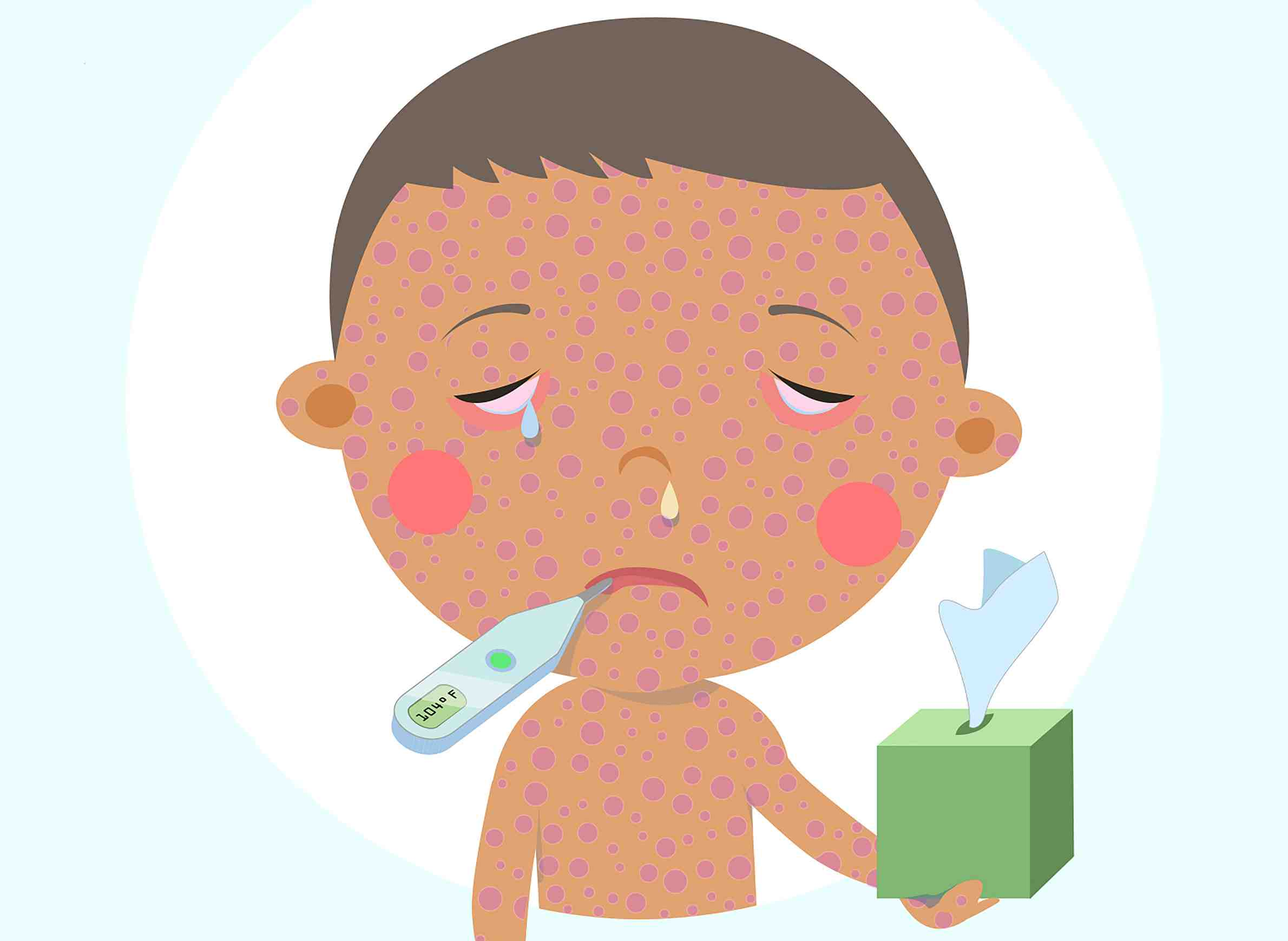 Centers for disease control and prevention clipart graphic free stock State Vulnerable to Measles Outbreak » Urban Milwaukee graphic free stock