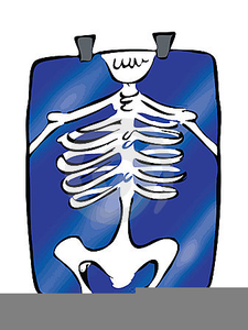 Chest xray clipart png royalty free download Chest X Ray Clipart | Free Images at Clker.com - vector clip art ... png royalty free download