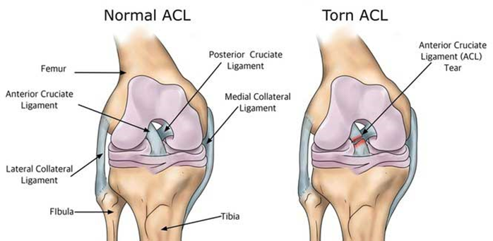 Clipart asl tear png free download News: Returning From An Acl Injury Amanda Doran Dpt   Aquahab ... png free download