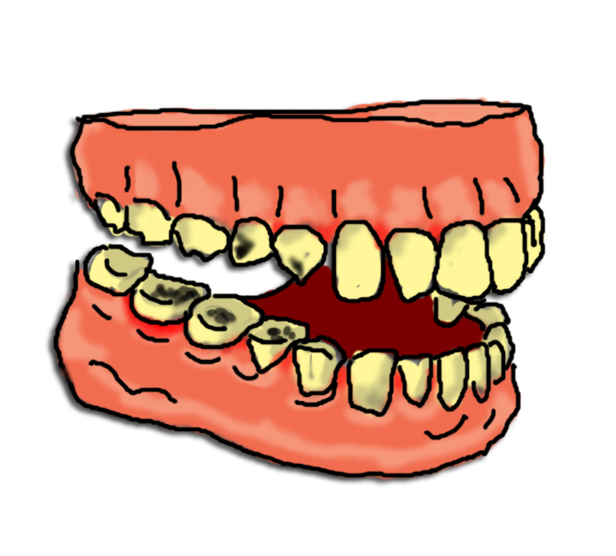Clipart bad teeth clip transparent library Bad teeth pictures clipart images gallery for free download | MyReal ... clip transparent library
