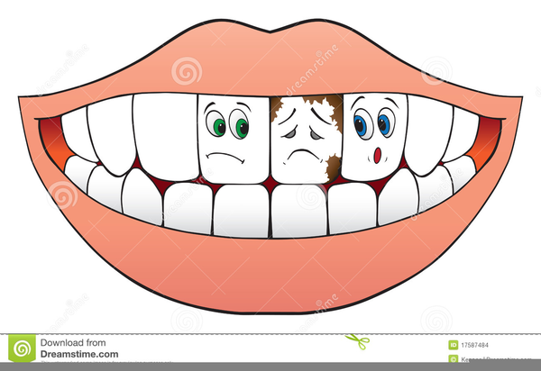 Clipart bad teeth svg library stock Bad Teeth Clipart | Free Images at Clker.com - vector clip art ... svg library stock