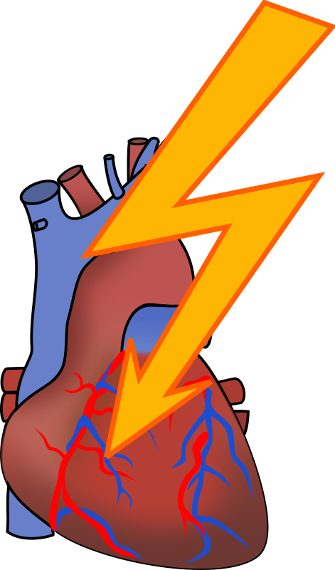 Clipart heart disease clipart transparent Clipart - Heart attack clipart transparent