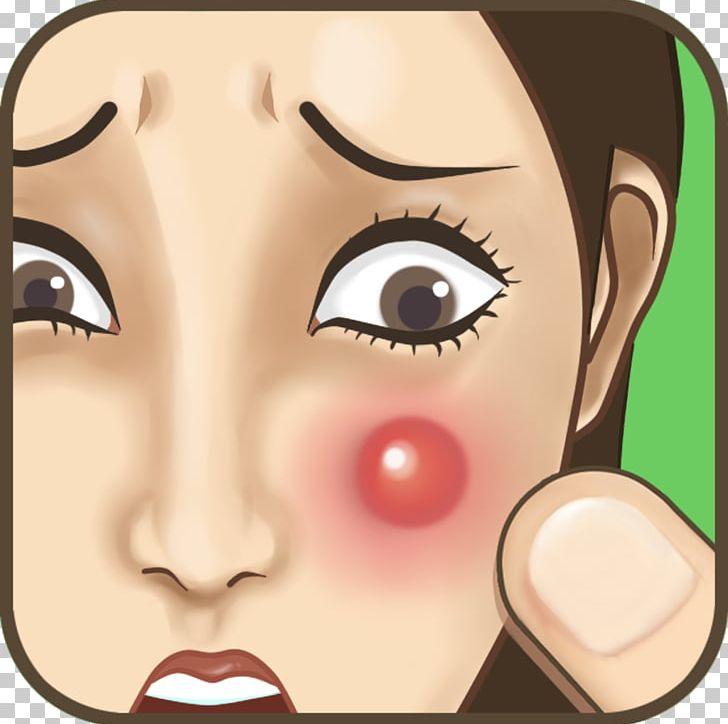 Clipart pimple