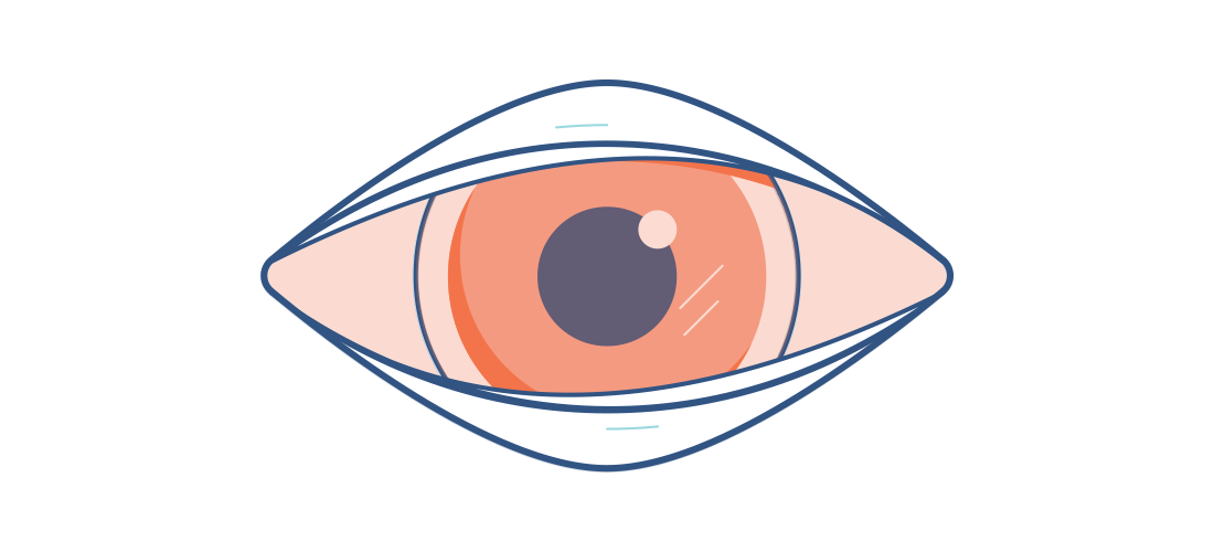 Conjunctivitis clipart graphic free library Conjunctivitis - Causes, Symptoms & More | Acuvue® graphic free library