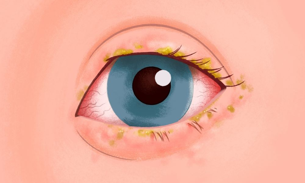 Conjunctivitis clipart image free download Pink eye - healthand.com image free download