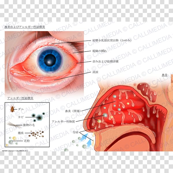 Conjunctivitis clipart banner free library Allergic conjunctivitis Hay fever Rhinitis Allergy, allergy ... banner free library